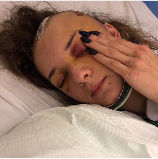 Уроженка Барнаула оказалась плену британского госпиталя после тяжелой травмы